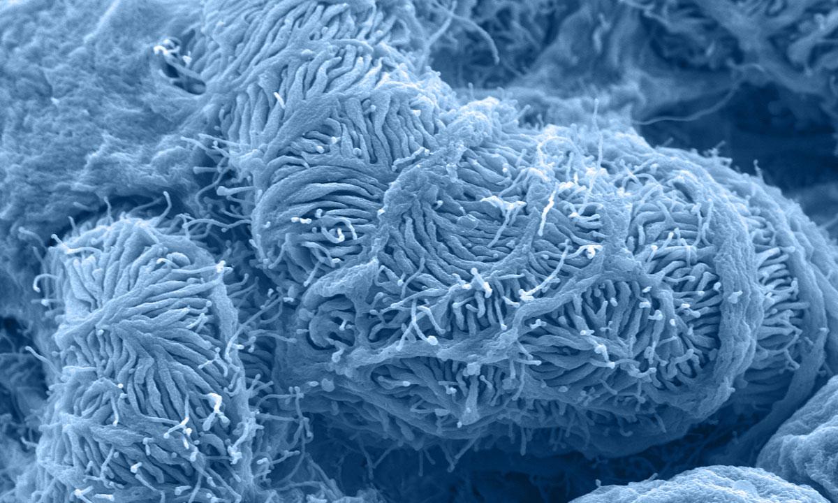 Nierenkörperchen in Großaufnahme
